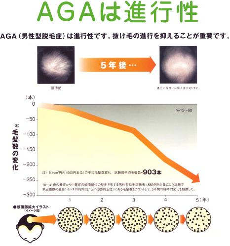 AGA(男性型脱毛症)ついて・解説図