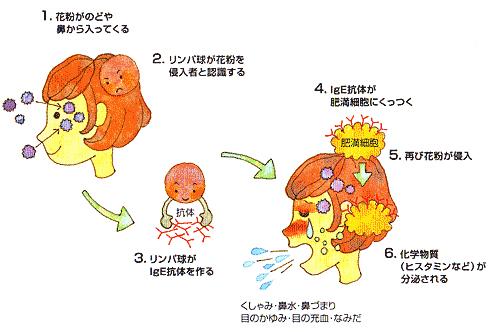 花粉症のメカニズム